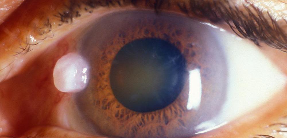 Cataracta: cauze, simptome, tratament